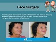 facelift video