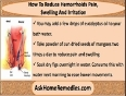 Use Hemorrhoids Herbal Treatment To Reduce Pain, Swelling And Irritation