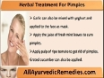 Use Pimple Herbal Treatment To Get Freedom From Pimples Naturally