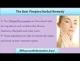 Pimples-herbal-remedy