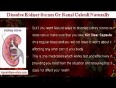 02-dissolve kidney stones or renal calculi naturally