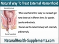 Natural Way To Treat External Hemorrhoid Safely At Home