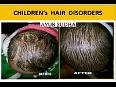 Ayurvedic hair fall treatment