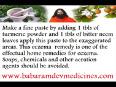 Swami baba ramdev remedies for eczema
