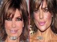 Celebrities Who REGRETS Plastic Surgery