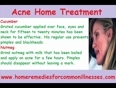 Best-acne-home-treatment-with-natural-home-remedies